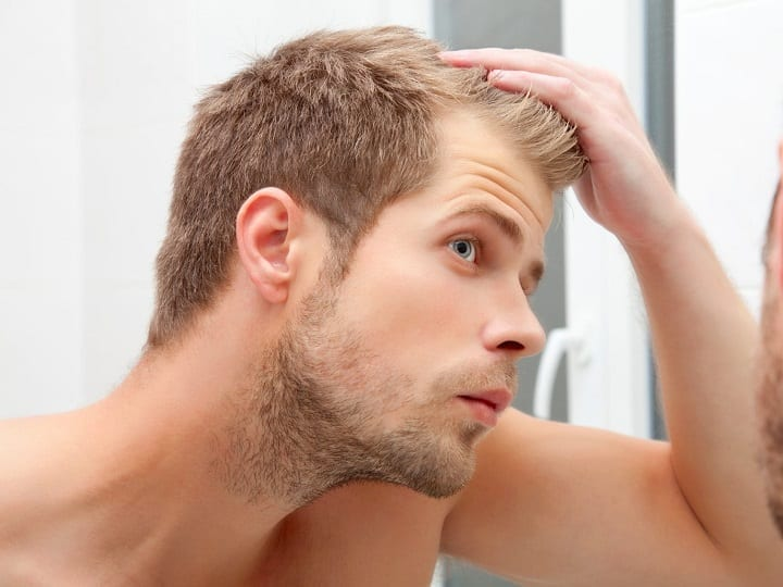 5 Reasons You Might Be Losing Your Hair