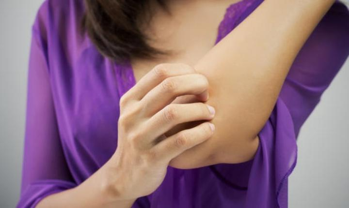 5 Home Remedies To Care For Dry, Itchy Elbows