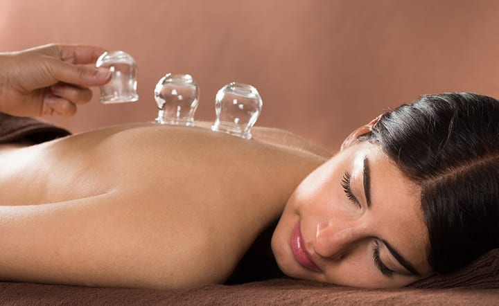 5 Reasons You Should Definitely Give Cupping Therapy A Try