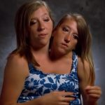 fashion, girls talking, conjoined twins