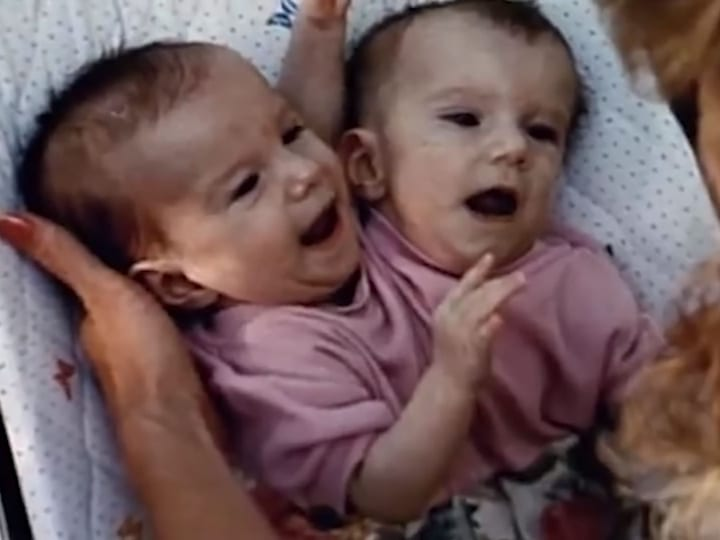 twins cradled, babies, conjoined twins